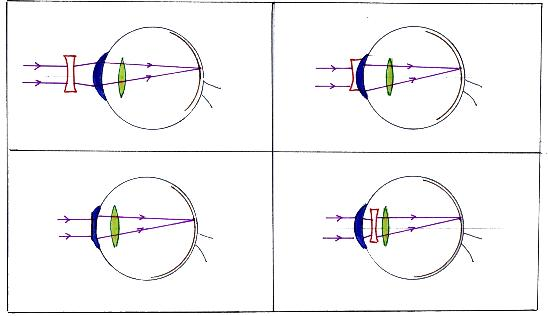 laser cornée implant myopique 46bd85922cd8